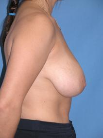 Breast Reduction Before Photo by Melek Kayser, MD; Saint Clair Shores, MI - Case 6601