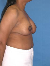 Breast Reduction After Photo by Melek Kayser, MD; Saint Clair Shores, MI - Case 6603