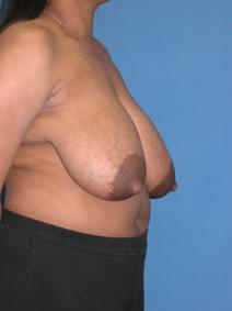 Breast Reduction Before Photo by Melek Kayser, MD; Saint Clair Shores, MI - Case 6603