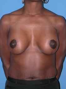 Breast Augmentation After Photo by Melek Kayser, MD; Saint Clair Shores, MI - Case 6605