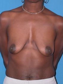 Breast Augmentation Before Photo by Melek Kayser, MD; Saint Clair Shores, MI - Case 6605