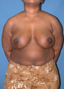 Breast Reduction After Photo by Melek Kayser, MD; Saint Clair Shores, MI - Case 6610
