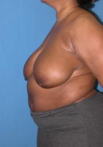 Breast Reduction Before Photo by Melek Kayser, MD; Saint Clair Shores, MI - Case 6610