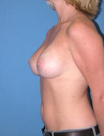 Breast Augmentation After Photo by Melek Kayser, MD; Saint Clair Shores, MI - Case 6614