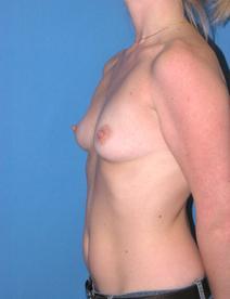 Breast Augmentation Before Photo by Melek Kayser, MD; Saint Clair Shores, MI - Case 6614