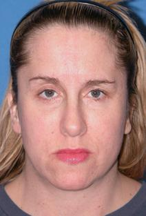 Eyelid Surgery After Photo by Melek Kayser, MD; Saint Clair Shores, MI - Case 6739