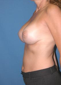 Breast Augmentation After Photo by Melek Kayser, MD; Saint Clair Shores, MI - Case 6743