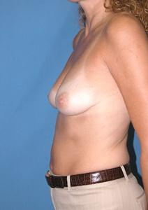 Breast Augmentation Before Photo by Melek Kayser, MD; Saint Clair Shores, MI - Case 6743