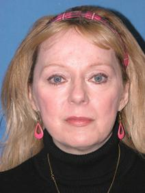 Facelift After Photo by Melek Kayser, MD; Saint Clair Shores, MI - Case 6750
