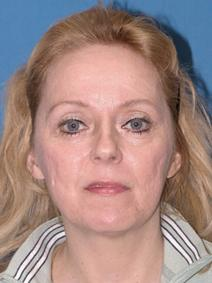 Facelift Before Photo by Melek Kayser, MD; Saint Clair Shores, MI - Case 6750
