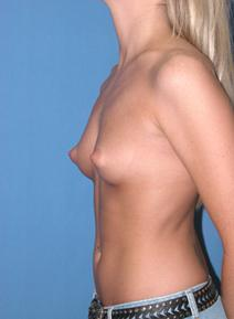 Breast Augmentation Picture