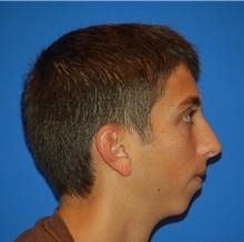 Chin Augmentation Before Photo by Joseph Daw, MD; Oak Lawn, IL - Case 34001