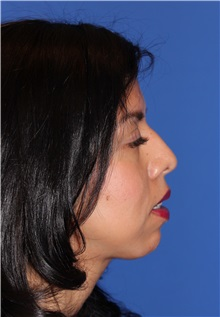 Rhinoplasty Photos | American Society of Plastic Surgeons