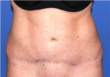 Tummy Tuck After Photo by Joseph Daw, MD; Oak Lawn, IL - Case 34010