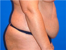 Tummy Tuck Before Photo by Joseph Daw, MD; Oak Lawn, IL - Case 34010