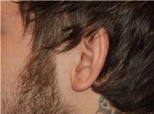 Ear Surgery After Photo by Joseph Daw, MD; Oak Lawn, IL - Case 34012