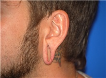 Ear Surgery Before Photo by Joseph Daw, MD; Arlington Heights, IL - Case 34012