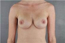 Breast Augmentation After Photo by Patti Flint, MD; Scottsdale, AZ - Case 36352