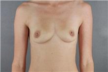 Breast Augmentation Before Photo by Patti Flint, MD; Scottsdale, AZ - Case 36352