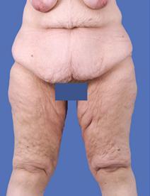 Body Contouring Before Photo by Jeffrey Kenkel, MD; Dallas, TX - Case 3972