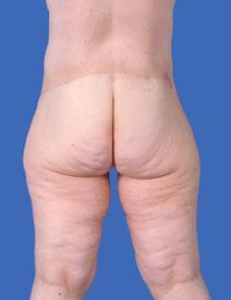 Body Contouring After Photo by Jeffrey Kenkel, MD; Dallas, TX - Case 3972