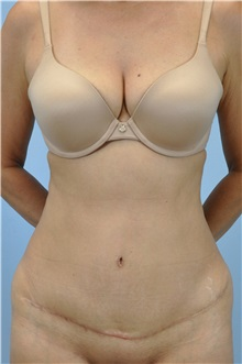 Tummy Tuck After Photo by Paul Vanek, MD, FACS; Mentor, OH - Case 32705