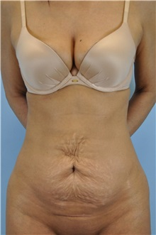 Tummy Tuck Before Photo by Paul Vanek, MD, FACS; Mentor, OH - Case 32705
