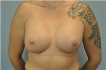 Breast Augmentation After Photo by Paul Vanek, MD, FACS; Mentor, OH - Case 32706