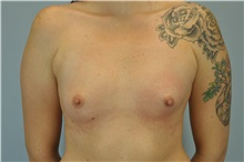 Breast Augmentation Before Photo by Paul Vanek, MD, FACS; Mentor, OH - Case 32706