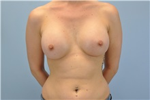 Breast Augmentation After Photo by Paul Vanek, MD, FACS; Mentor, OH - Case 32711