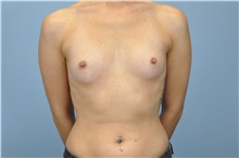 Breast Augmentation Before Photo by Paul Vanek, MD, FACS; Mentor, OH - Case 32711