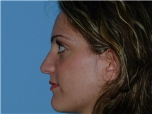 Rhinoplasty After Photo by Paul Vanek, MD, FACS; Mentor, OH - Case 32714