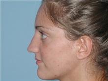 Rhinoplasty Before Photo by Paul Vanek, MD, FACS; Mentor, OH - Case 32714