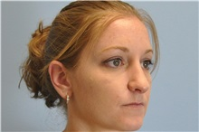Rhinoplasty After Photo by Paul Vanek, MD, FACS; Mentor, OH - Case 32715