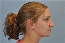 Rhinoplasty Before Photo by Paul Vanek, MD, FACS; Mentor, OH - Case 32715