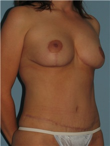 Body Contouring After Photo by Paul Vanek, MD, FACS; Mentor, OH - Case 32755