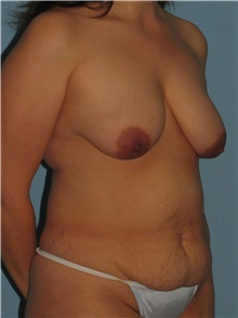 Body Contouring Before Photo by Paul Vanek, MD, FACS; Mentor, OH - Case 32755