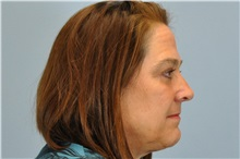 Eyelid Surgery After Photo by Paul Vanek, MD, FACS; Mentor, OH - Case 32757