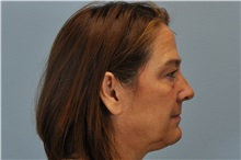 Eyelid Surgery Before Photo by Paul Vanek, MD, FACS; Mentor, OH - Case 32757