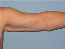 Arm Lift After Photo by Paul Vanek, MD, FACS; Mentor, OH - Case 32759
