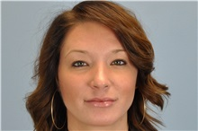 Lip Augmentation / Enhancement After Photo by Paul Vanek, MD, FACS; Mentor, OH - Case 32769