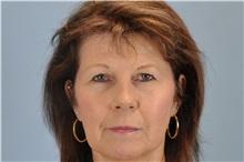 Lip Augmentation / Enhancement Before Photo by Paul Vanek, MD, FACS; Mentor, OH - Case 32770