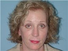 Lip Augmentation / Enhancement After Photo by Paul Vanek, MD, FACS; Mentor, OH - Case 32771