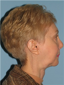 Chin Augmentation After Photo by Paul Vanek, MD, FACS; Mentor, OH - Case 32772