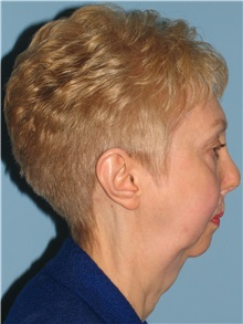 Chin Augmentation Before Photo by Paul Vanek, MD, FACS; Mentor, OH - Case 32772