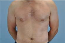 Male Breast Reduction After Photo by Paul Vanek, MD, FACS; Mentor, OH - Case 32774
