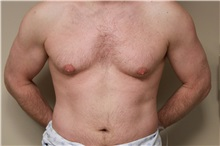 Male Breast Reduction Before Photo by Paul Vanek, MD, FACS; Mentor, OH - Case 32774