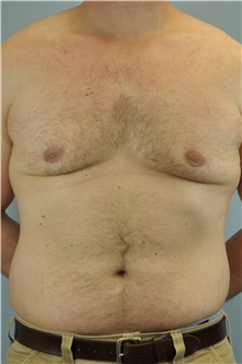 Male Breast Reduction After Photo by Paul Vanek, MD, FACS; Mentor, OH - Case 32776