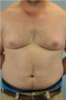 Male Breast Reduction Before Photo by Paul Vanek, MD, FACS; Mentor, OH - Case 32776