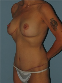 Body Contouring After Photo by Paul Vanek, MD, FACS; Mentor, OH - Case 32778